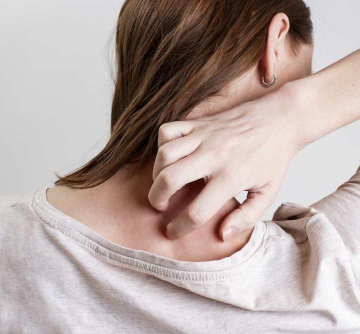 pierderea în greutate din psoriazis scalp)