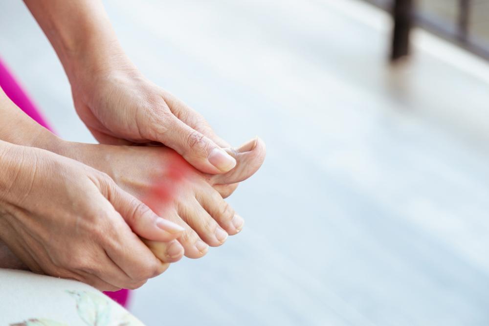 Ce rol joacă dieta în Gout Management Arthritis Foundation